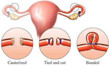 Fallopian Tubal Ligation Surgery Options