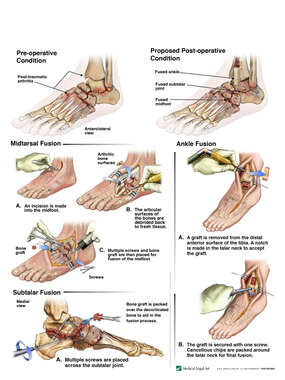 Left Foot Fractures, Post-traumatic Arthritis and Eventual Surgical Midtarsal, Subtalar and Ankle Fusion