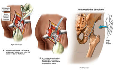 Internal Fixation of Right Hip