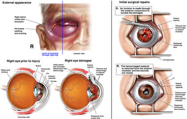Blunt Trauma to the Right Eye with Surgical Repairs