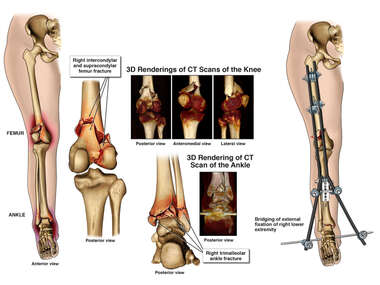 Right Leg Injuries with Application of External Fixation Device