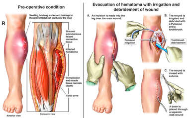 Right Leg Hematoma with Surgical Evacuation