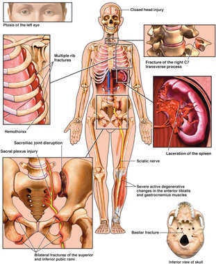 Injuries to the Eyes, Ribs, Cervical Spine, Spleen, Pelvis and Base of the Skull