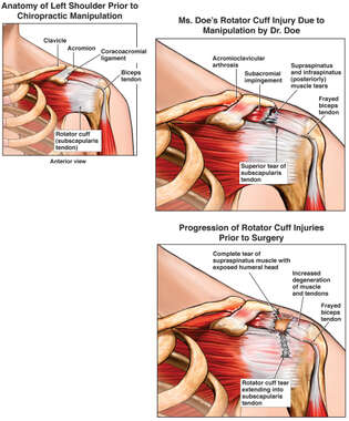 Massive Shoulder Injuries