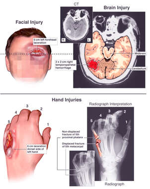 Accident Related Injuries to the Head and Hand