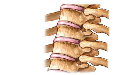 Anterolateral Thoracic Spine