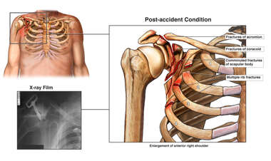 Right Chest and Shoulder Injuries
