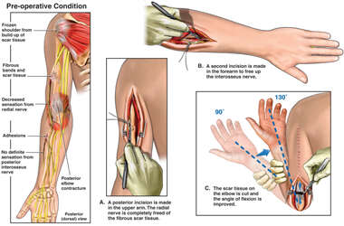Surgical Procedures Performed on the Left Arm and Elbow