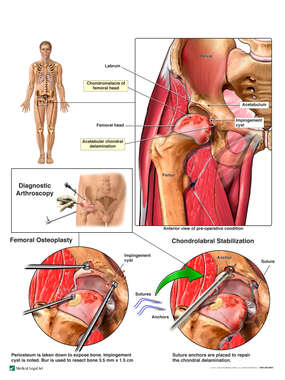 Right Hip Injuries with Arthroscopic Surgery