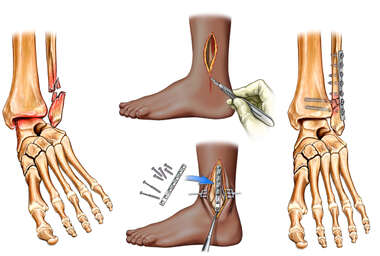 Left Ankle Fracture with Surgical Fixation