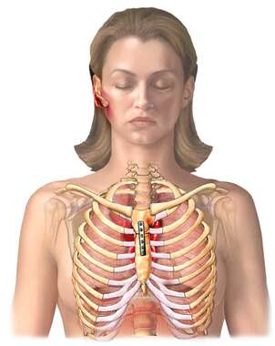 Thoracic Injuries