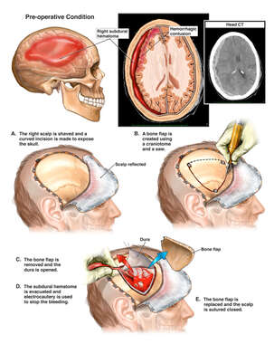 Brain Injury with Surgical Craniotomy