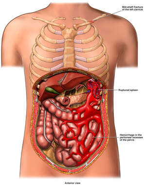 Anterior Cut-Away View of the Torso with Post-accident Injuries to the Abdomen