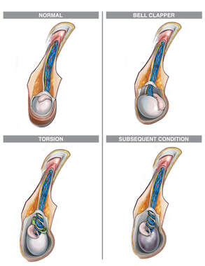 Bell Clapper Deformity and Complications