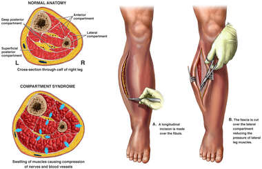 Compartment Syndrome with Fasciotomy Surgery