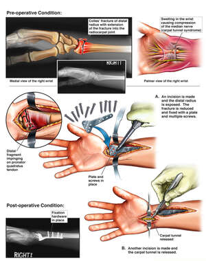 Right Wrist Injuries with Initial Surgical Repairs
