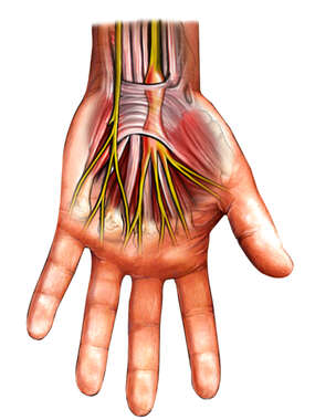 Carpal Tunnel Syndrome, Palmar View