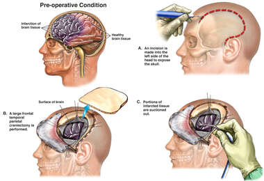 Brain Surgery - Craniectomy and Resection of Necrotic Brain Tissue