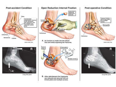 Right Calcaneal Fracture with Surgical Repair