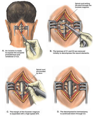 Suboccipital Craniectomy and Cervical Laminectomies