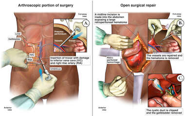 Intra-operative Vascular Damage with Immediate Surgical Repair