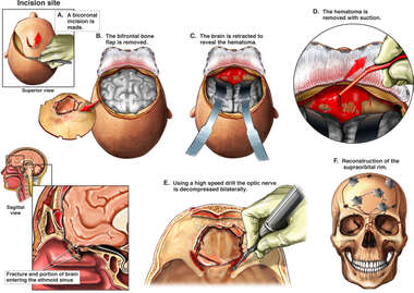 Brain Surgery - Craniotomy Procedure to Remove a Hematoma