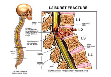 L2 COMPRESSION BURST FRACTURE WITH SPINAL CORD INJURY