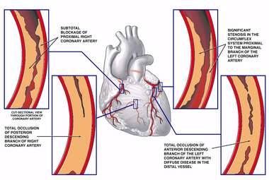 Coronary Artery Disease with Blockage Sites