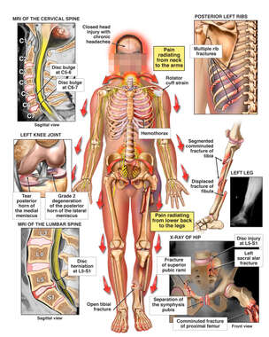 Male Figure with Radiculopathy,  Fractures and X-Ray Films of Injuries to the Cervical-Lumbar Spine, Ribcage, Knee, Leg and pelvis