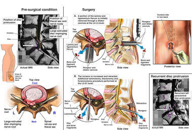 Lumbar Spine Injuries with Decompression Surgery