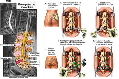 Lumbar Disc Herniation with Surgical Repairs
