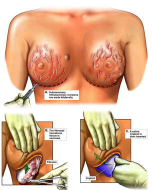 Bilateral Breast Amputations with Surgical Reconstructions