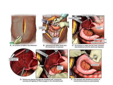 Surgical Treatment for Duodenal Ulcers
