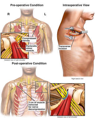 Bilateral Pectoralis Minor Syndrome with Surgical Repairs