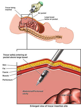 Abdominal Laparoscopy Trocar Insertion