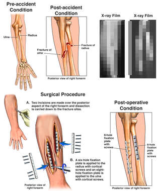 Right Both Bone Forearm Fractures with Surgical Fixation