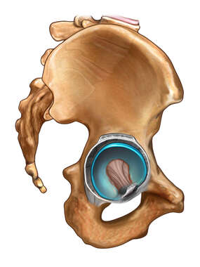 Right Acetabular Anatomy