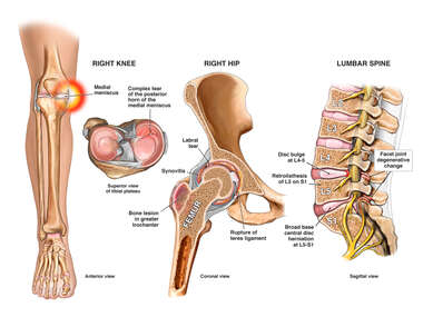 Traumatic Knee, Hip and Spine Injuries