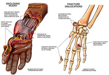 Post-accident Hand Degloving and Fracture Injuries