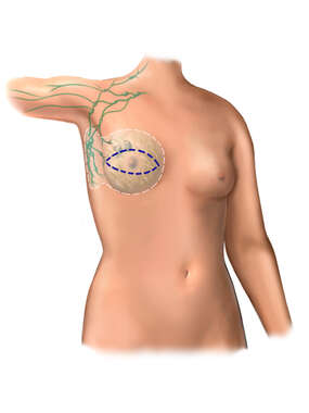 Mastectomy Incision Sites