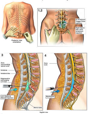 Lumbar Spine Injury with Radiating Pain