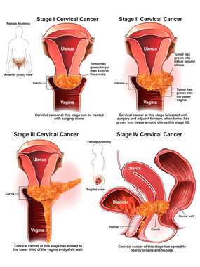 Stages of Cervical Cancer