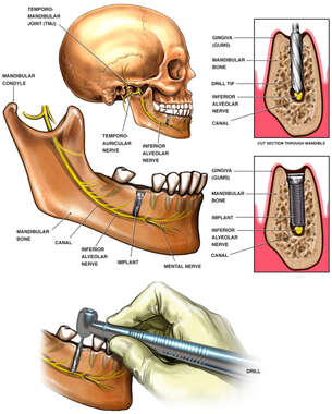Inferior Alveolar nerve Injury from Dental Drill/Implant