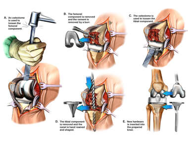 Revision of Total Knee Arthroplasty
