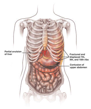 Female Torso with Post-accident Injuries of the Liver, Ribs, Stomach and Colon