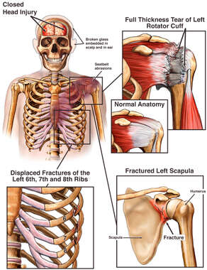 Head and Shoulder Injuries