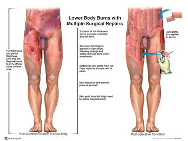 Lower Body and Thigh Burns with Multiple Surgical Repairs