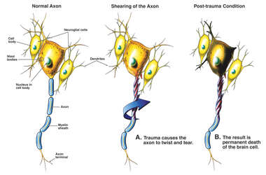 Axon Shear (Post-concussion Syndrome)