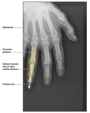 Fixation of the right middle finger fracture