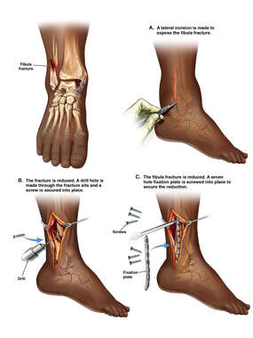 Right Ankle Fracture with Surgical Fixation